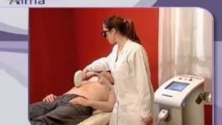 Soprano Painless Laser Hair Removal in Birmingham Thumbnail
