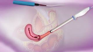 Физиотерапевтический комбайн для гинекологии - BTL-4000 Premium G
