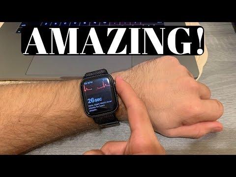 APPLE WATCH EKG HAS ALREADY SAVED A LIFE!