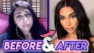 Chantel Jeffries Before and After Transformations Plastic Surgery Transformation