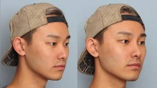 MY NOSE FILLER PLASTIC SURGERY EXPERIENCE