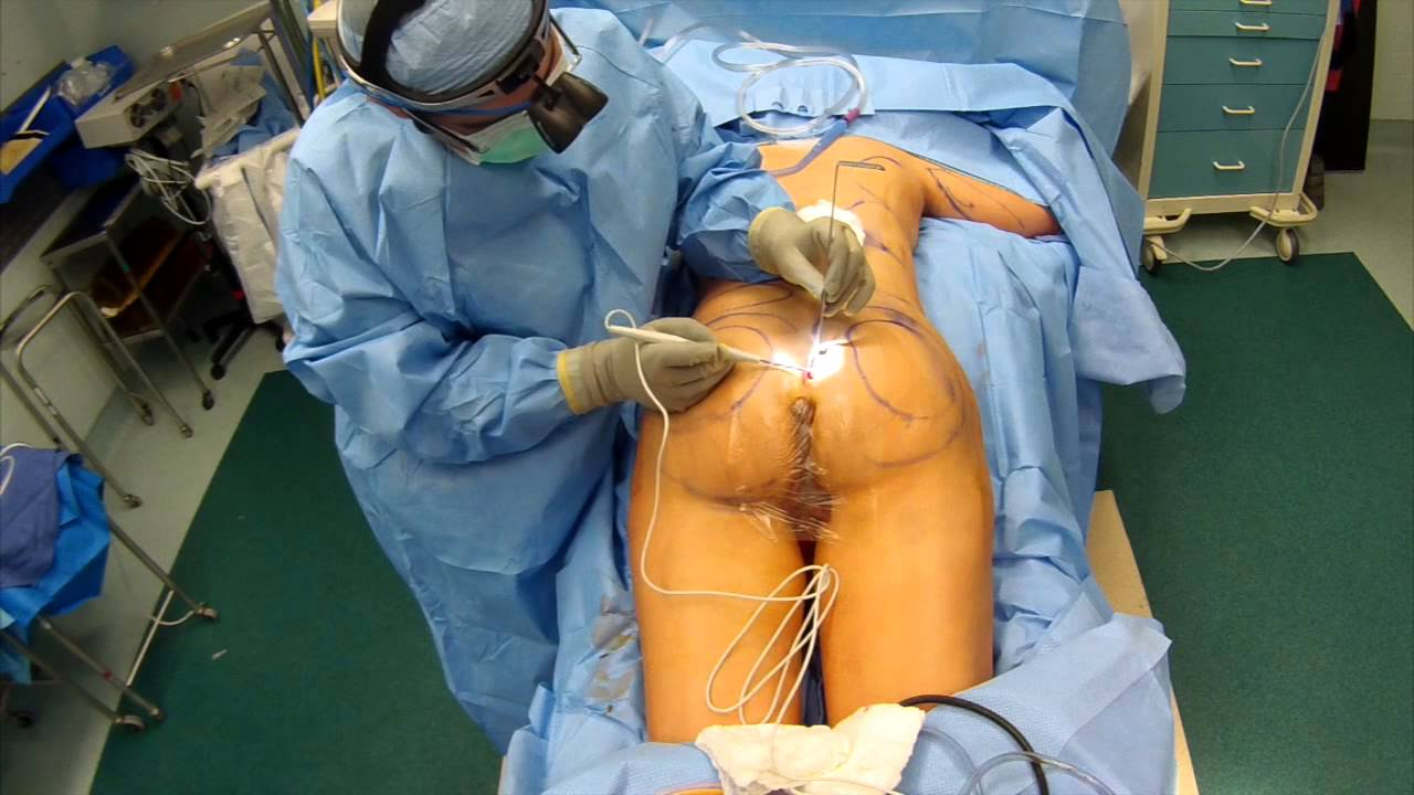Operazione sul membro gonfiabile