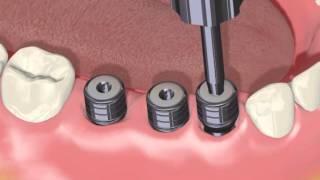 Implantation im Falle von fehlenden Zähnen am Ende des Zahnbogens