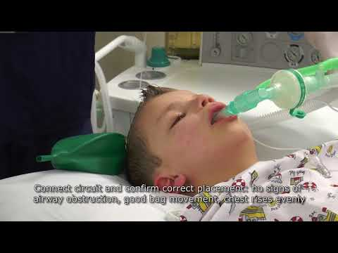 Paediatric Anaesthetics: Chapter 2 -  LMA insertion (1)