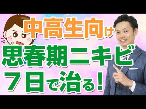 思春期ニキビを治す方法☆中学生、高校生はこの対策で! (道山ケイ)