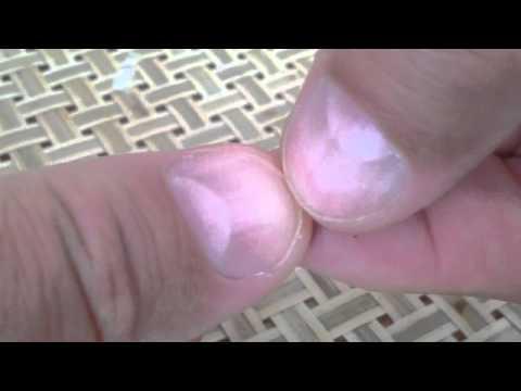 Diabetic ? Quick Fingernail Test for Diabetes