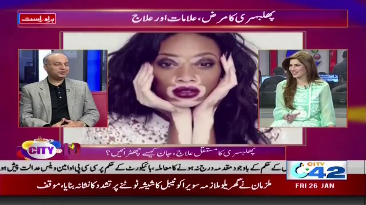 Leukoderma Vitiligo Treatment And Cure In Lahore Pakistan Youtube