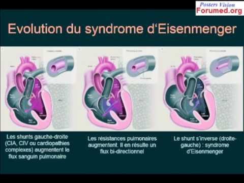 Hipertensión definisjon knulle