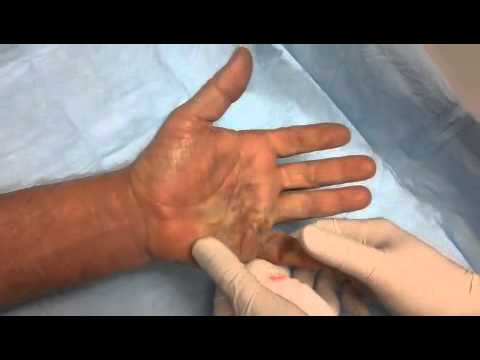 Dupuytren's Contracture Treatment with Xiaflex Video #2 ...