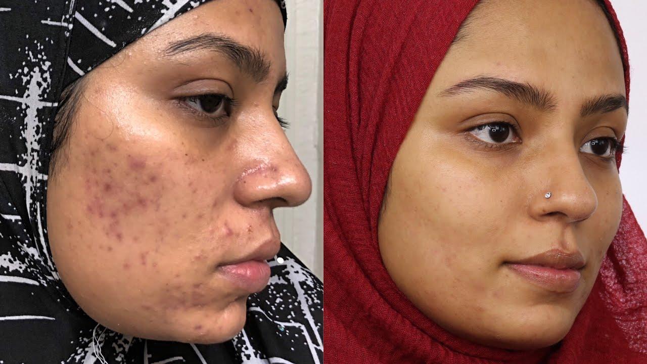 nizoral shampoo for acne scars