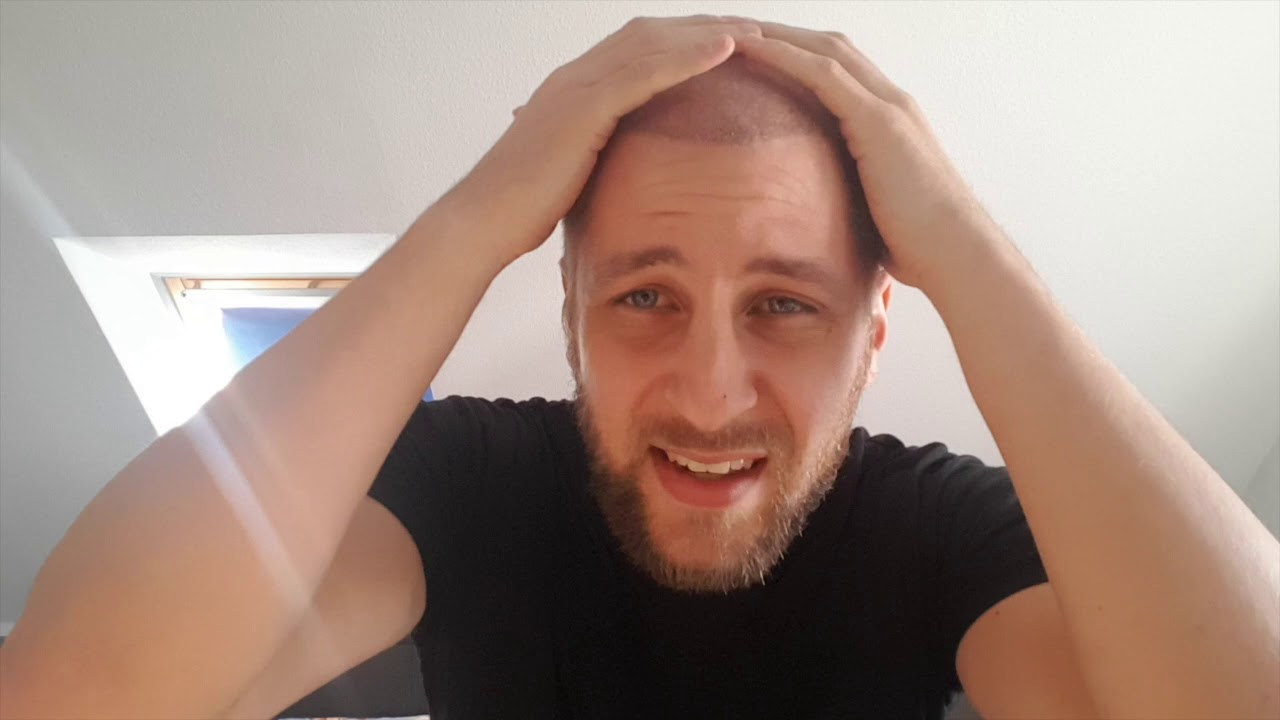 Haartransplantation Tag 23 - Haarausfall geht weiter - YouTube
