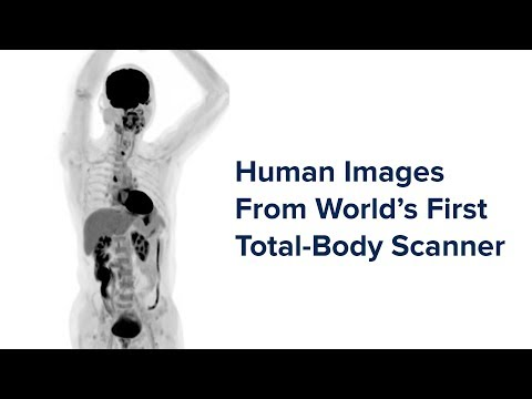 Human Images From World's 1st Total-Body Scanner Unveiled