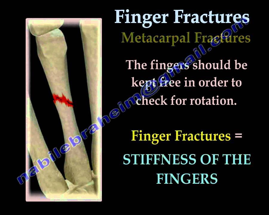 finger fractures essay A sprain is a stretch or tear of a ligament while a strain is an injury to a muscle or tendon learn how to lower your risks of sprains and strains.