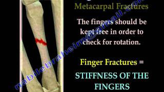 Finger and metacarpal Fractures - Everything You Need To Know - Dr. Nabil Ebraheim