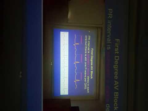 ECG Basics 2nd part.. PR interval Dr Salah Mabrouk Khallaf