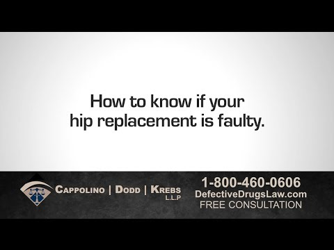 Is Your Hip Replacement Faulty? Ask Defective Medical Device Lawyer Richard Dodd