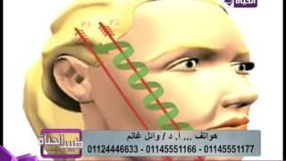 طبيب الحياة - أ.د/وائل غانم استشاري جراحات التجميل - بالفيديو كيف يتم تجميل الوجه بالخيوط ؟