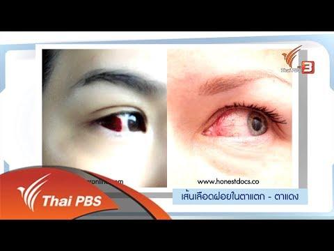 เส้นเลือดฝอยในตาแตก รู้ทัน รักษาได้ (22 ต.ค. 61)