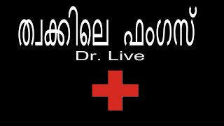 Skin fungal infection | Doctor Live 31/10/15