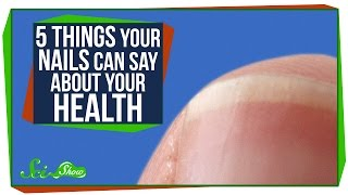 5 Things Your Nails Can Say About Your Health(Your nails can do more than just look pretty. They can tell you some things about your health! ---------- Dooblydoo thanks go to the following Patreon supporters ..., 2015-09-14T21:00:03.000Z)