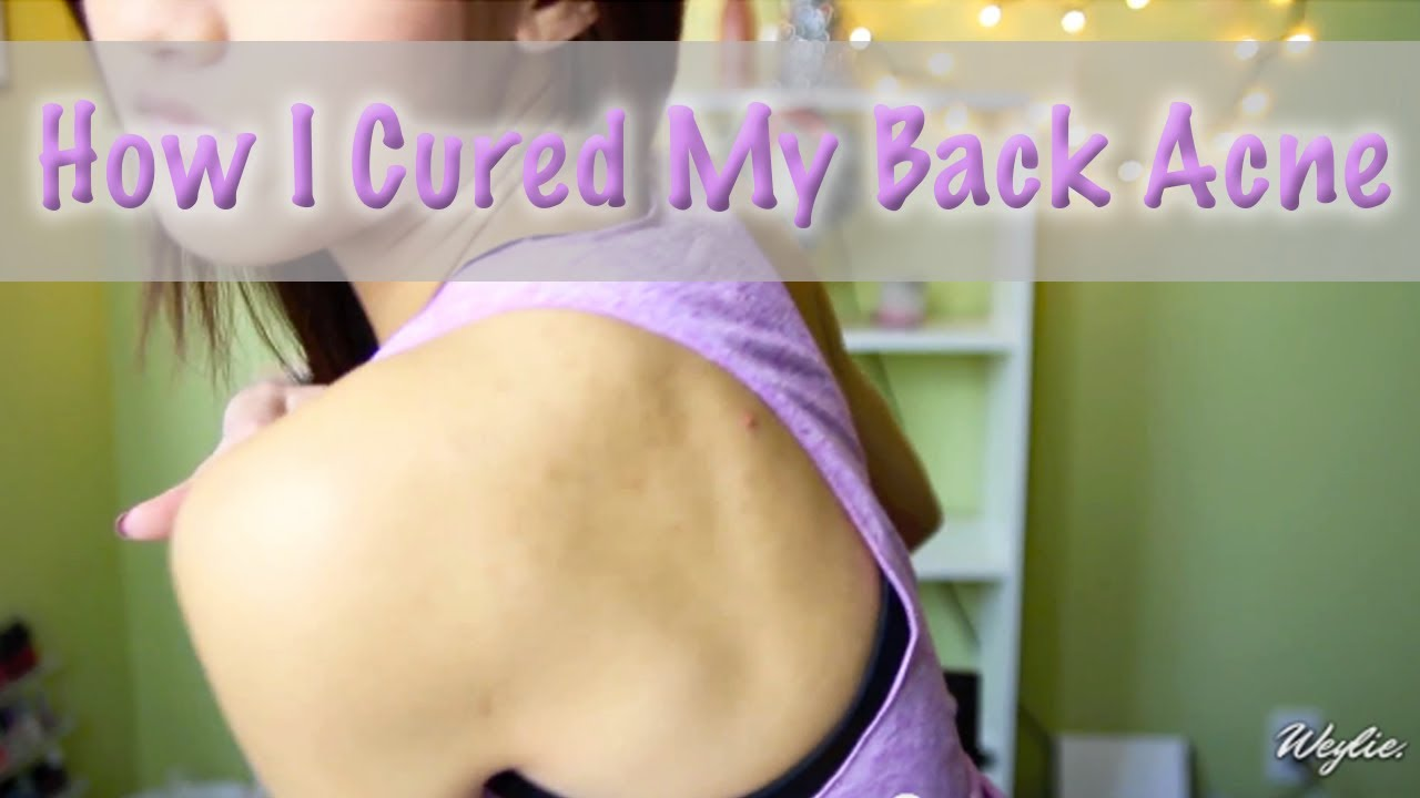 getting rid of acne caused by steroids