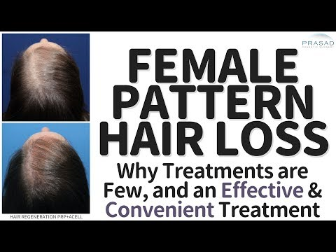 What You Need to Know About Causes of Hair Loss in Women, and Treating Female Pattern Hair Loss