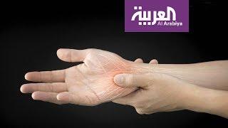 صباح العربية | ماذا يعني تنميل الأطراف؟