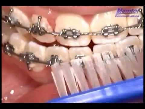 Dentista Como Limpar Aparelho Fixo Youtube