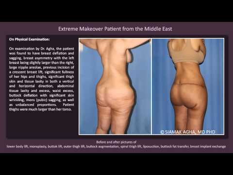 Total Body Lift Before and After Pictures: Segement 7