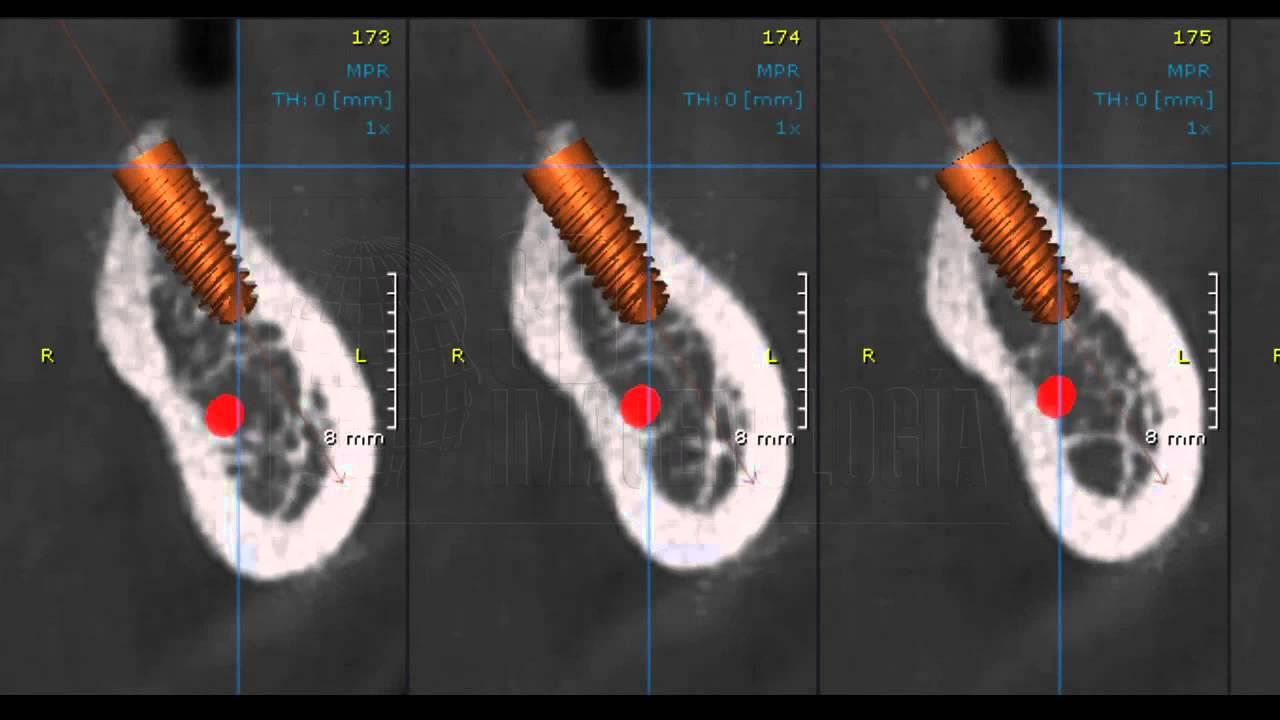 Colocacion Implante Virtual Con Tomografia Cone Beam Youtube