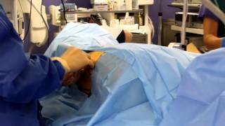 Лечение межпозвонковой грыжи без операции laser spine center(Disc hernia/protrusion treatment London http://www.pldd-london.eu Лазерная терапия / вапорация грыжи позвоночника - лечение межпозвоночн..., 2014-11-20T17:30:41.000Z)