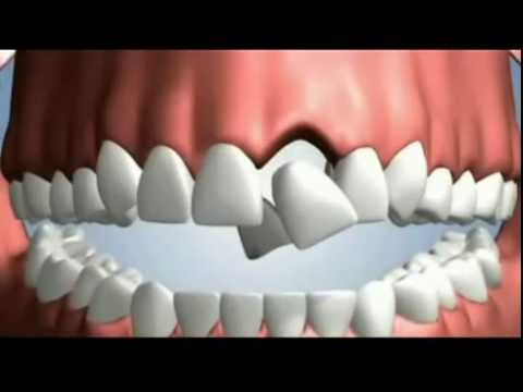4 Options to Replace a Tooth