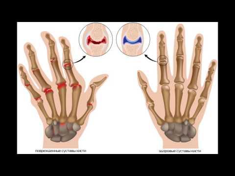 Суставы болят руки