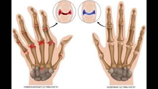 Почему болят суставы рук и ног?