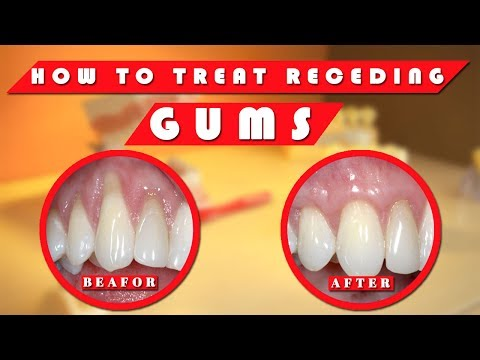 Receding gums: How to stop receding gums at home naturally