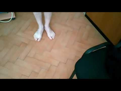 Разрыв мениска и ПКС , метод доктора Попова, результат с первого сеанса