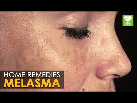 melasma treatment cure home remedies health tips youtube. Black Bedroom Furniture Sets. Home Design Ideas