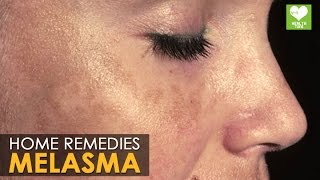 Melasma Treatment (Cure) - Home Remedies | Health Tips