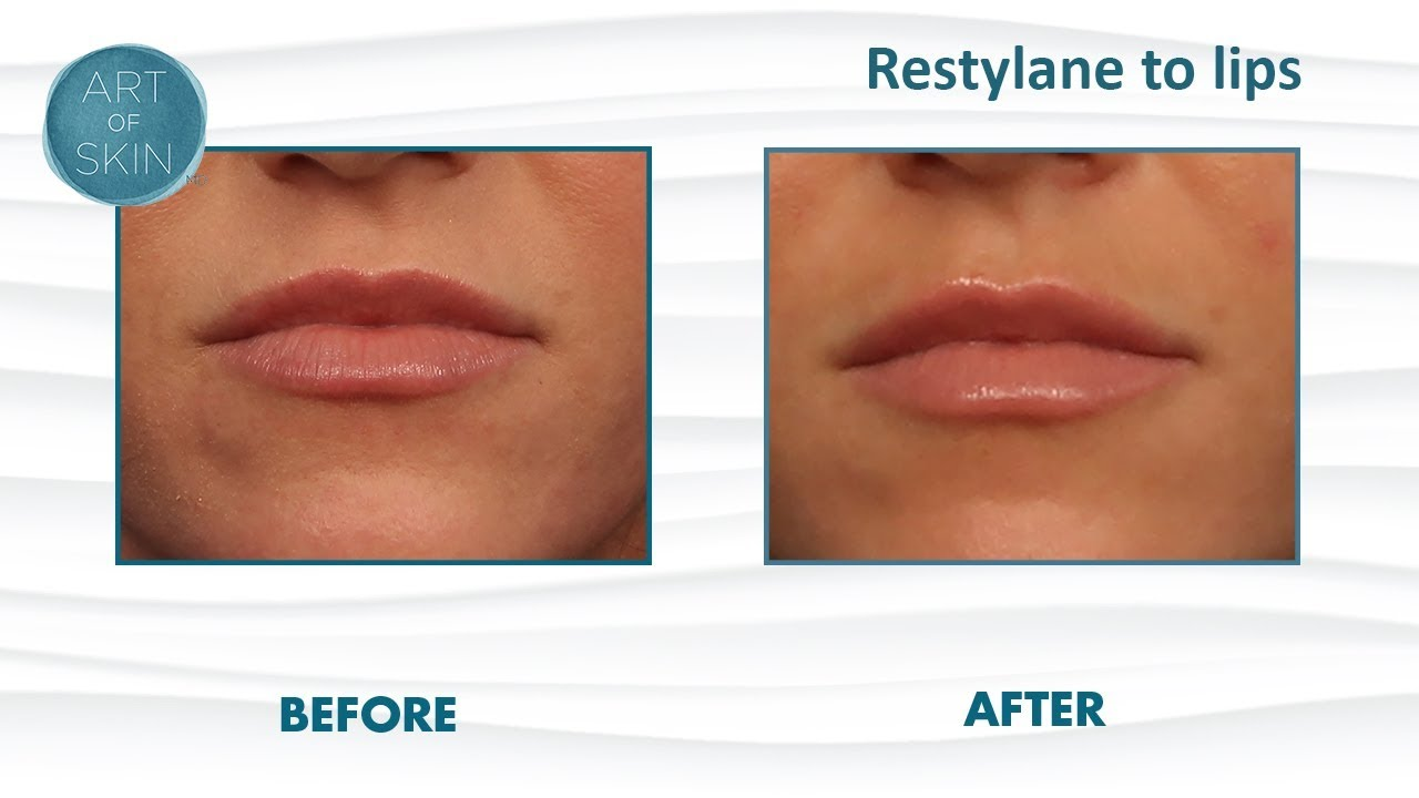 Perfect lips: Filler Restylane to lips with cannula Dr  Melanie Palm Art of  Skin MD San Diego CA