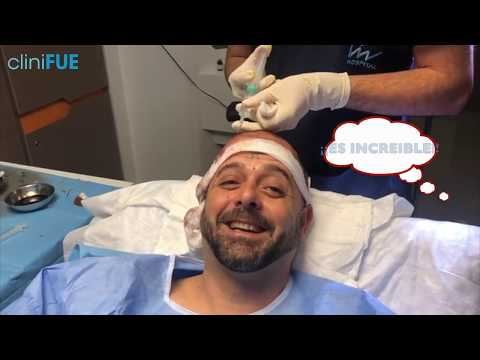 Un caso increible de Anestesia en su trasplante capilar ¿Nos estas engañando?