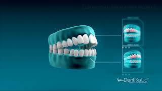 Diseño de sonrisa Digital - DentiSalud