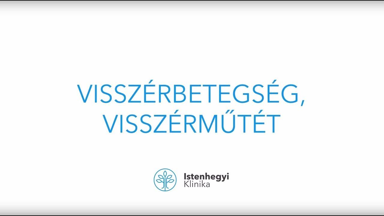 árak volzhsky visszérműtét fehér akác visszér kezelésére