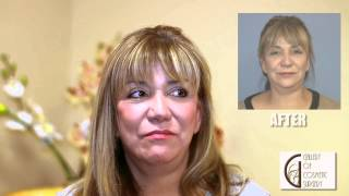 Eyelid and Fat Grafting Orange County - Dr Sadati Newport Beach