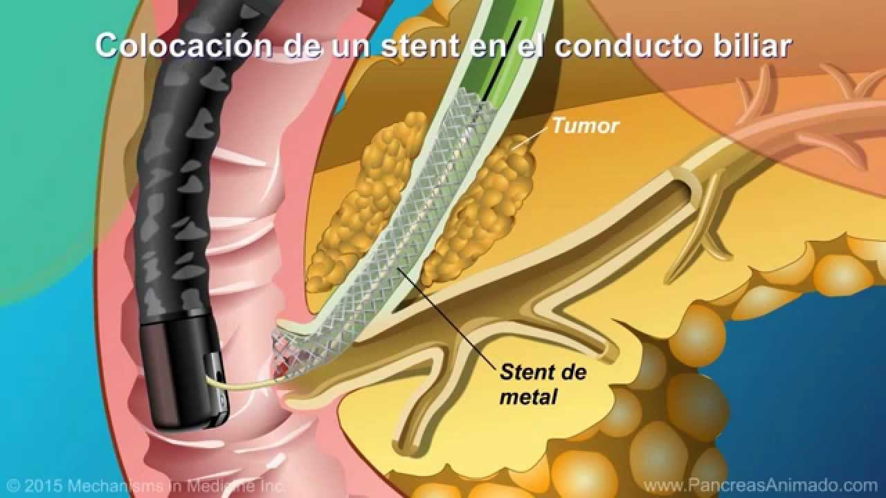 Qué es la colangiopancreatografía retrógrada endoscópica (CPRE ...