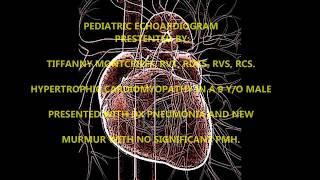 Pediatric echocardiogram Hypertrophic Cardiomypathy