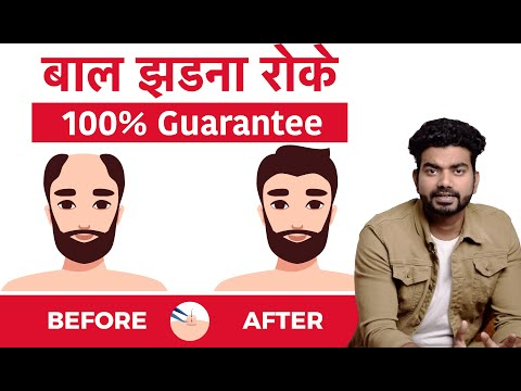stop-hair-fall-guarantee-|-बाल-झड़ना-रोके-|-male-pattern-baldness-cure-|-by-house-of-anabolics