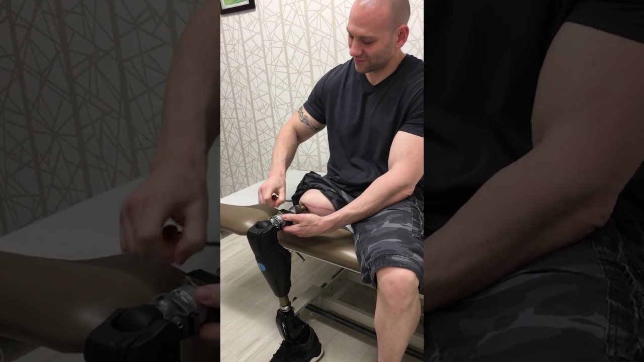 Osseointegration Limb Replacement More Control For Amputees