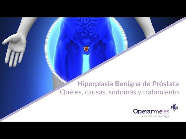 peso de la próstata 30 grupos