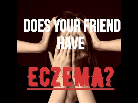 Do You Know Someone With Eczema?-Eczema symptoms/Eczema treatment/Natural Eczema remedies