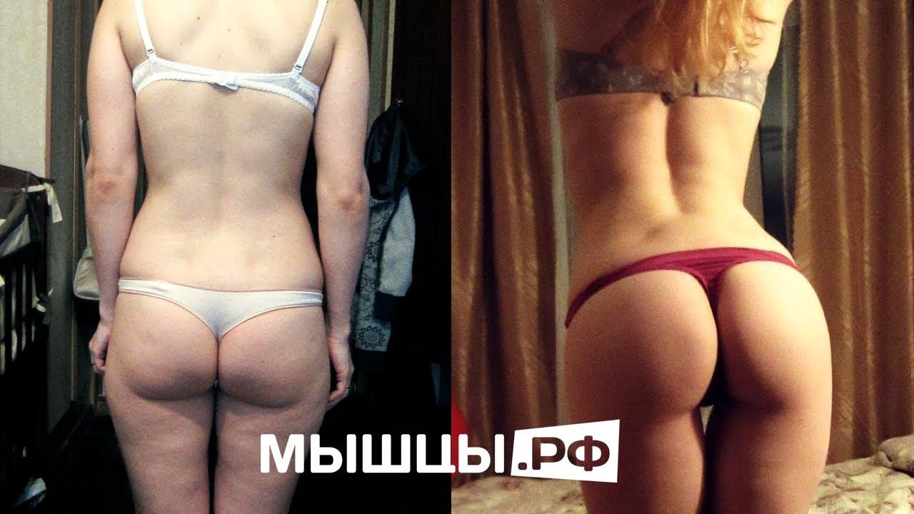 усманова екатерина до и после пластики фото